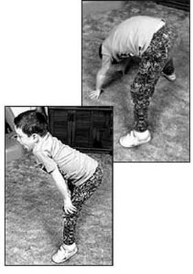 الحثل العضلي الدوشيني . Duch6.jpg