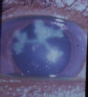 ����� �������  ... ��������� Trachoma � ����� Trachoma2.jpg