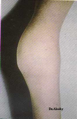 انواع امراض الدم hemoph.jpg