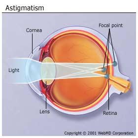 حرج النظر - الاستجماتيزم  Astigmatism AstigmatismA3