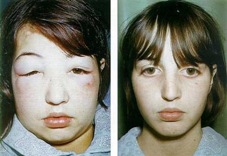 moonface akibat kortikosteroid