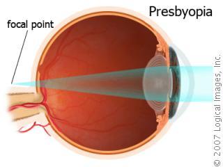 مد البصر الشيخوخي أو القدع Presbyopia PresbyopiaA2