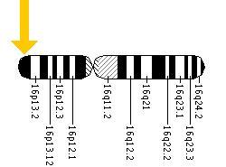 متلازمة روبينشتاين - تايبي Rubinstein-Taybi%20%281%29