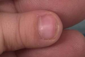 متلازمة روبينشتاين - تايبي Rubinstein-Taybi%20%289%29