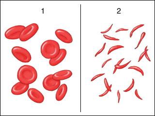 مرض أنيميا فقر الدم المنجلية